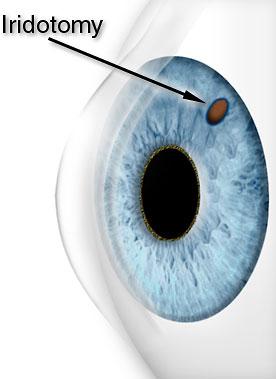 Tri State Eye Glaucoma